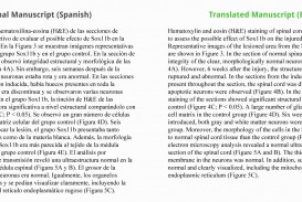 015 Translate Essay To Spanish Example Work Sample Staggering My Into What Does Mean In 320