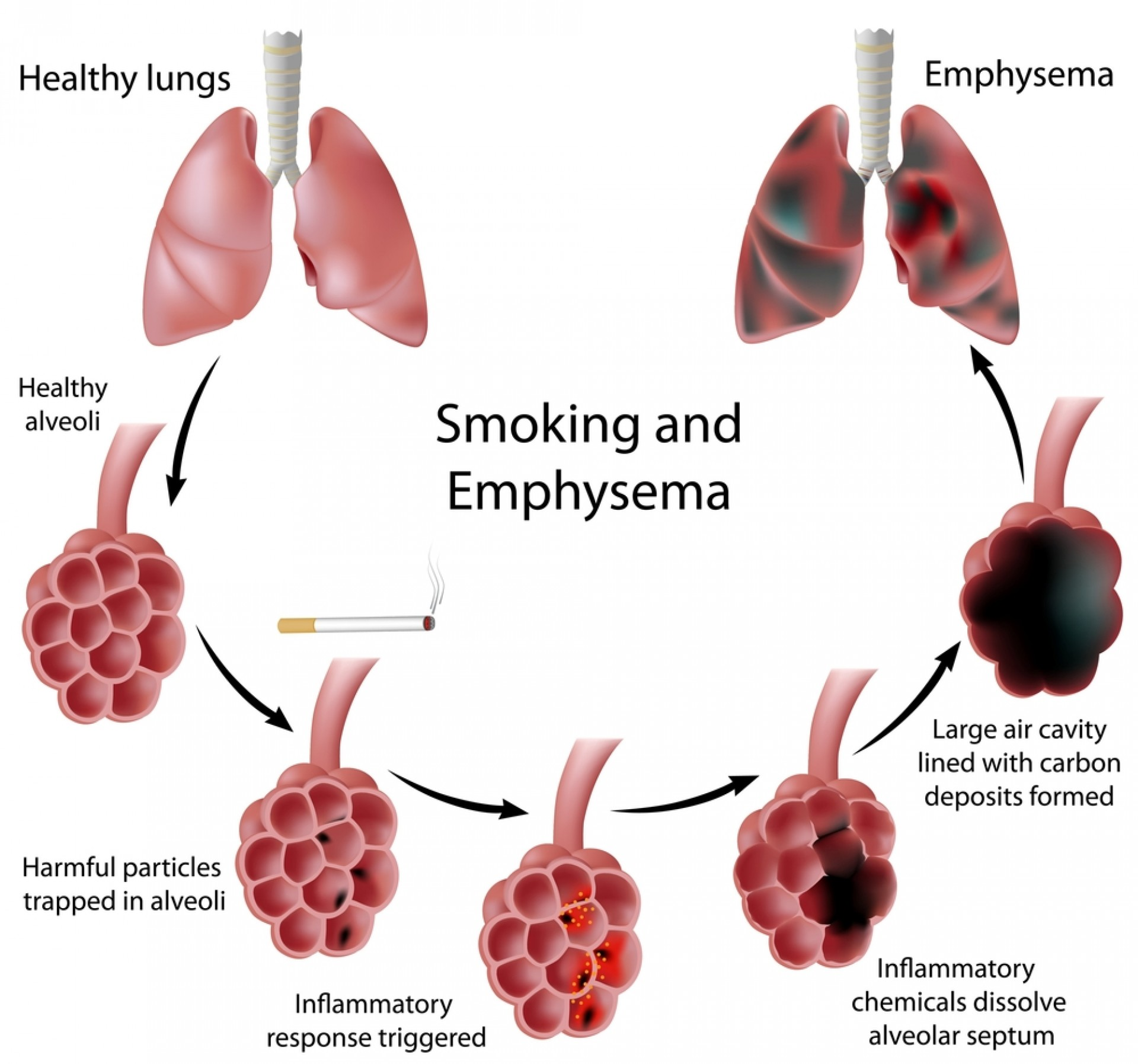 016 Essay On Respiratory Diseases Example Shutterstock 90181159 Fascinating 1920