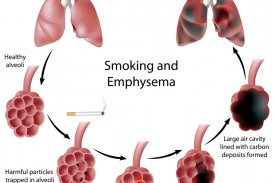 016 Essay On Respiratory Diseases Example Shutterstock 90181159 Fascinating