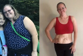 019 Personal Essay Loose Skin From Weight Loss Impressive Tomlinson Conclusion Surgery