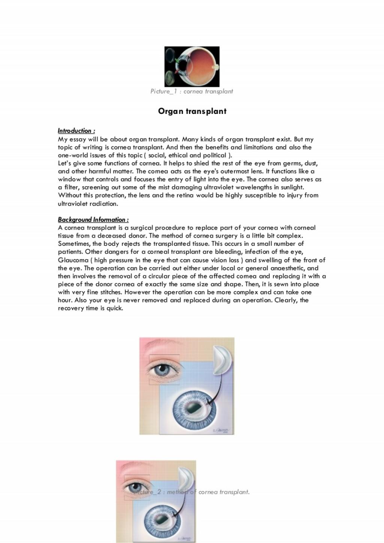 020 Organtransplantessay Phpapp01 Thumbnail Organ Donation Essay Top Transplant Argumentative Persuasive Introduction Outline Large