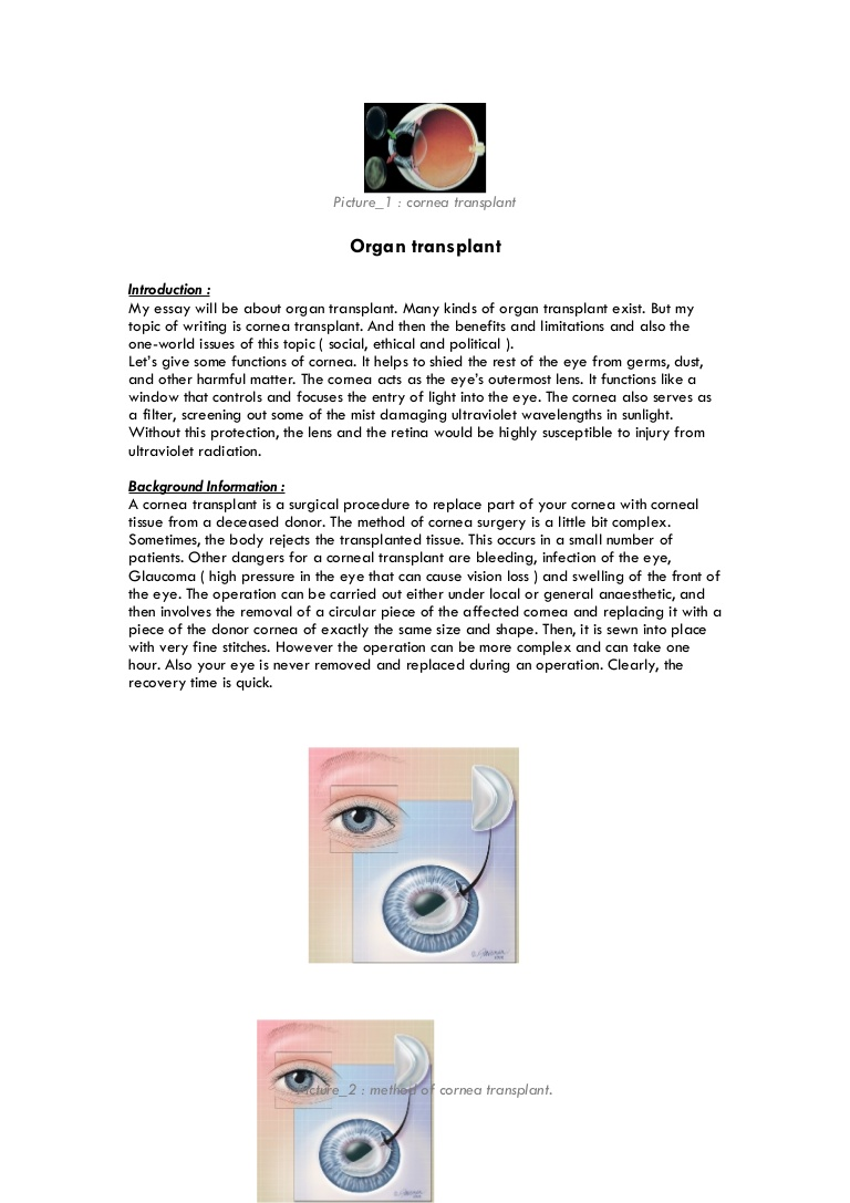 020 Organtransplantessay Phpapp01 Thumbnail Organ Donation Essay Top Transplant Argumentative Persuasive Introduction Outline Full