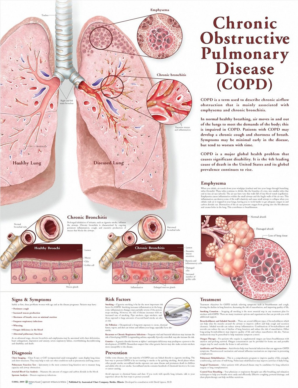023 Essay Example Copd Chart On Respiratory Fascinating Diseases Large