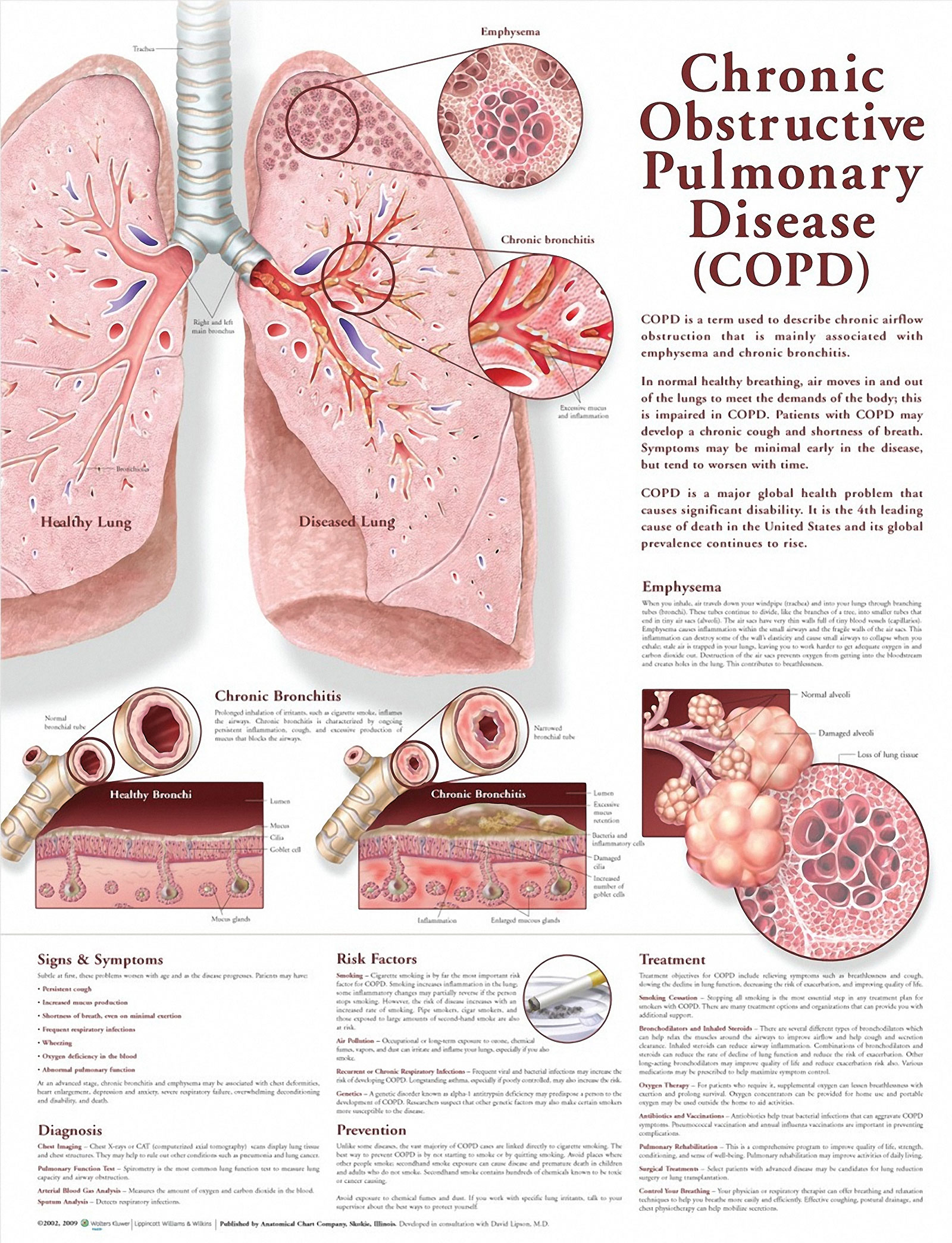 023 Essay Example Copd Chart On Respiratory Fascinating Diseases Full